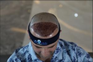 Krusten nach der Haartransplantation