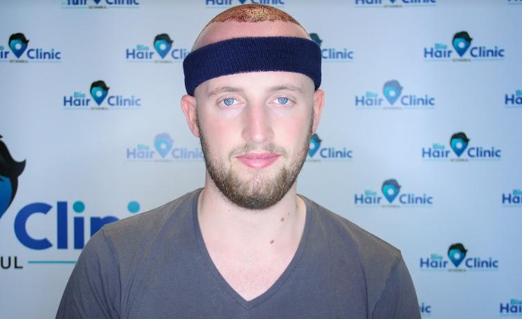 Wann hilft eine Haartransplantation