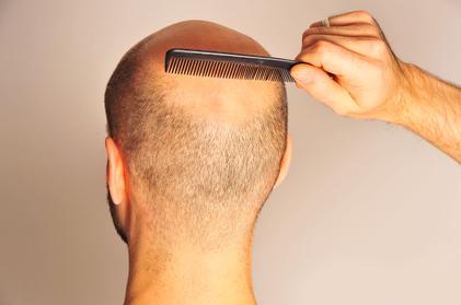 Glatzenbildung – was hilft dagegen?