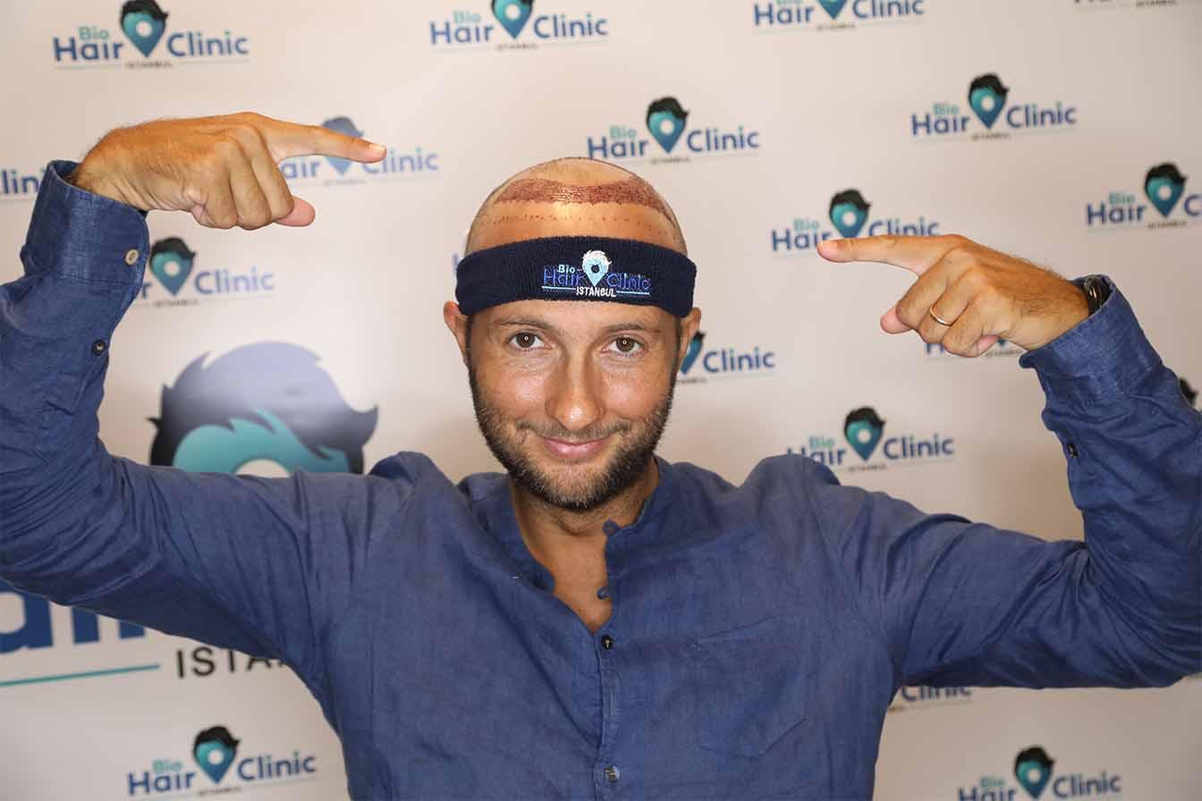 Haartransplantation Korrektur