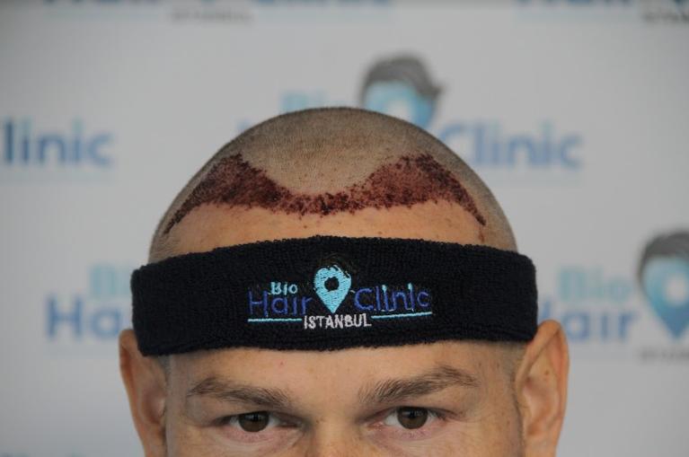 Kosten einer Haartransplantation gegen Geheimratsecken