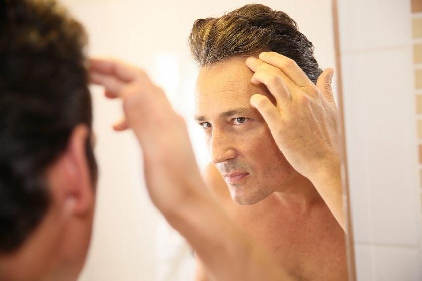 Haartransplantation gegen Geheimratsecken | Bio Hair Clinic