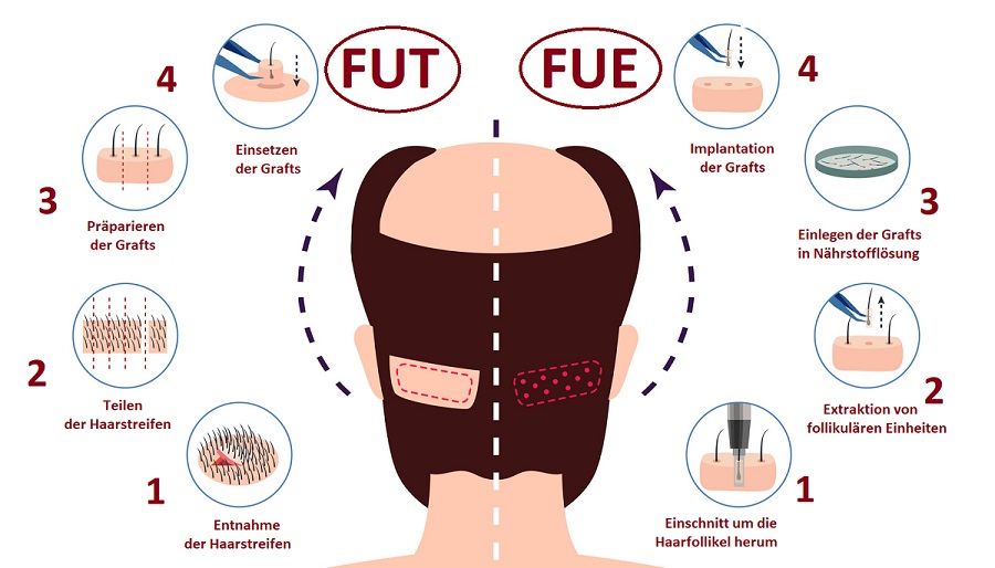 Haartransplantation Methoden - Fut Vs Fue