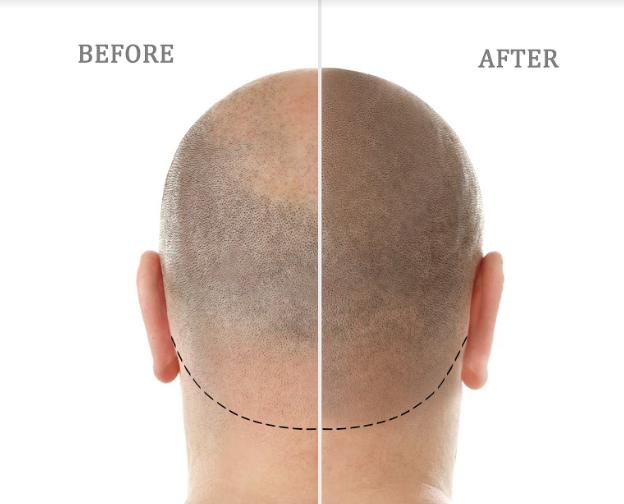 Haare nach einer Haartransplantation