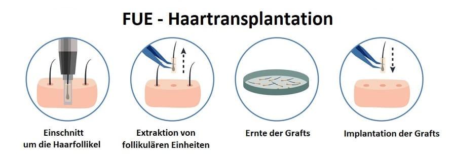 Haare schneller wachsen - FUE Haartransplantation