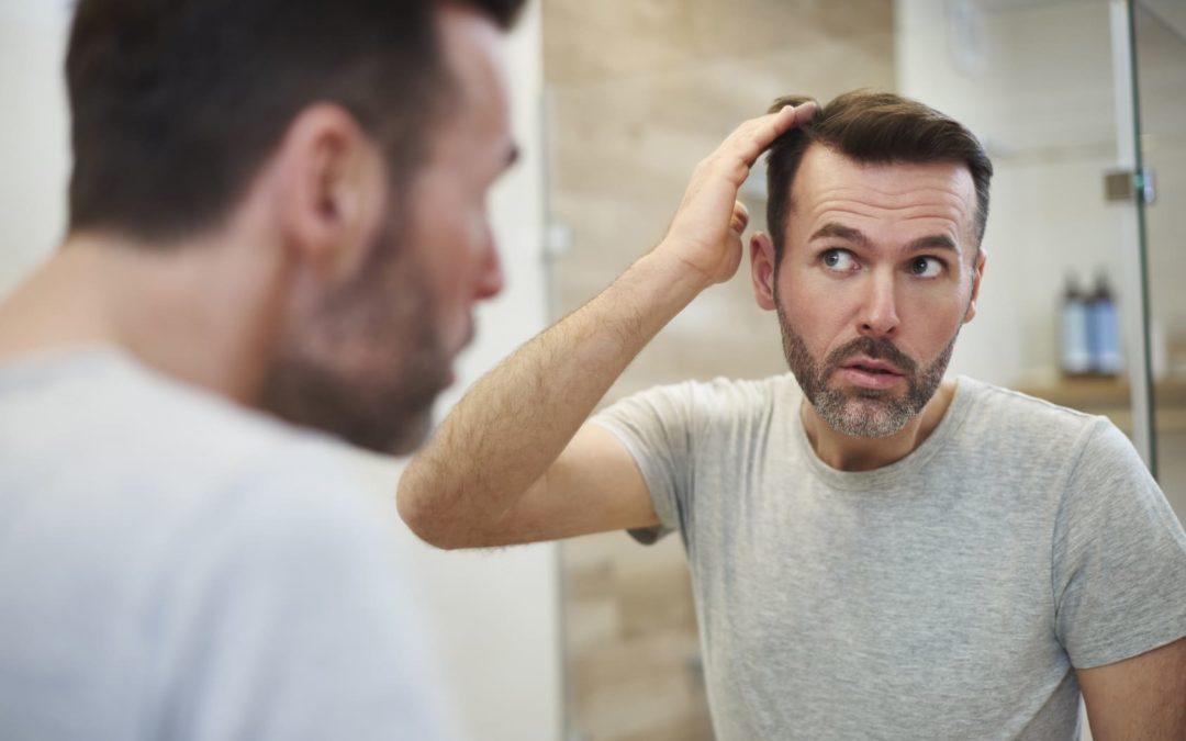 6 Tipps gegen Haarausfall – So beugen Sie vor