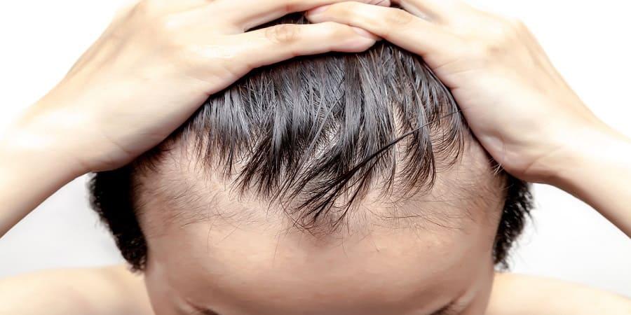 Führt die Dense Packing Haartransplantation zu vollem Haar?