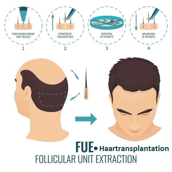 Haartransplantationstechniken - FUE Haartransplantation