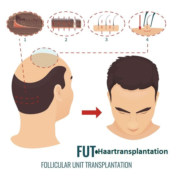 Haartransplantationstechniken - FUT-Haartransplantation
