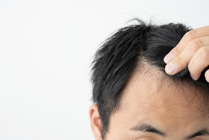 Dense Packing Haartransplantation - Wer kann?