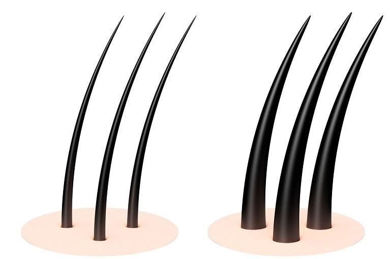 Dense Packing Haartransplantation - Grafts