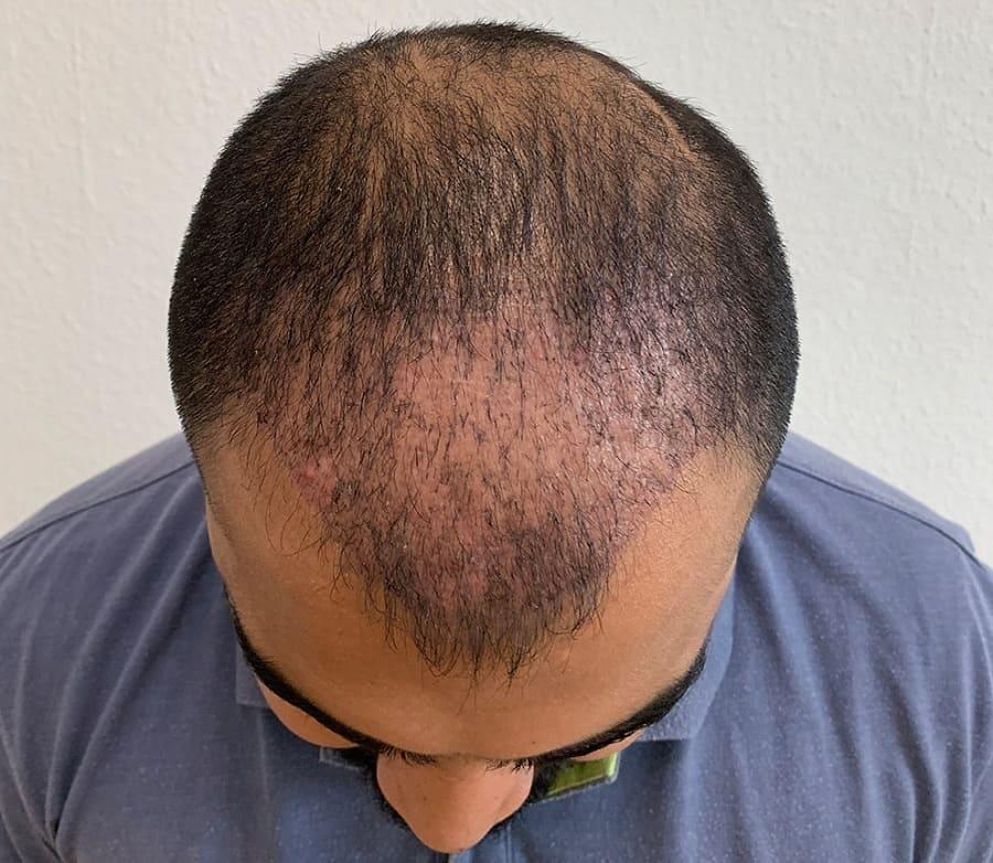 Dünne Haare - Haare nach Haartransplantation
