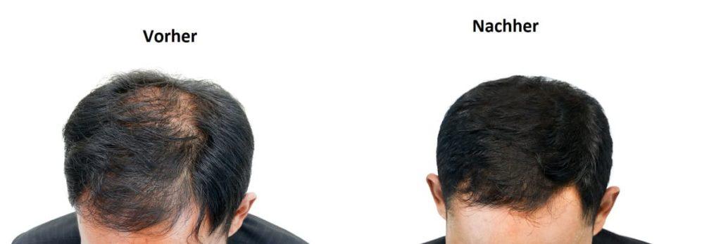 Dünne Haare - Vorher nachher