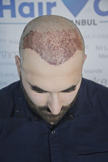 Haartransplantation Narben vorprogrammiert - narbenfreie Haarverpflanzung