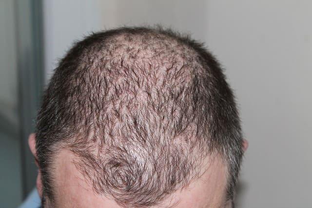 Haartransplantation sinnvoll - Genetisch bedingter Haarausfall