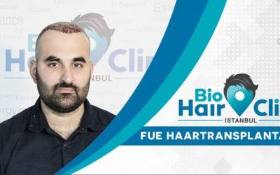 Wo kann ich die Haartransplantation am besten durchführen lassen?