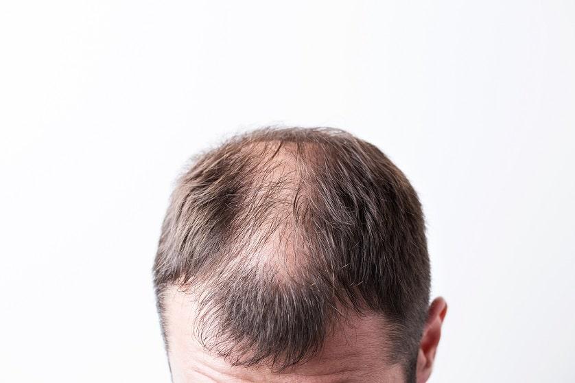 Nahaufnahme eines Mannes mit Haarausfall