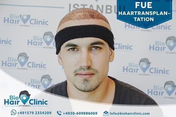 fehlgeschlagene Haartransplantation - Whal der Klinik