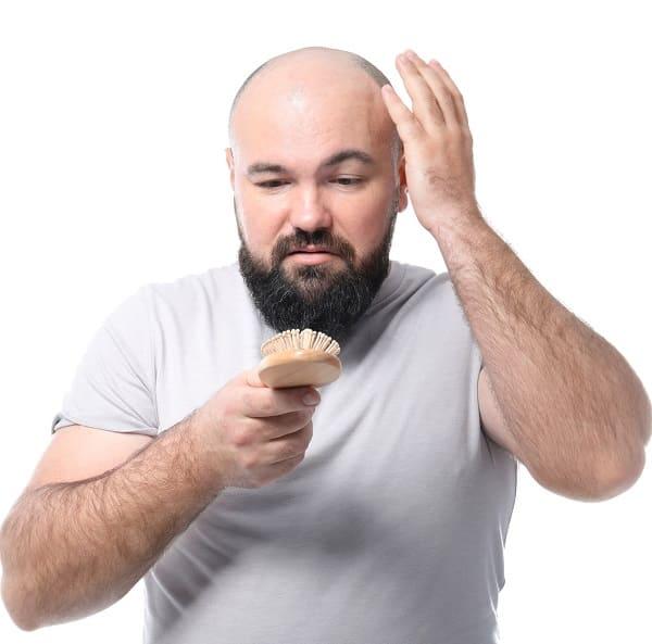 Beweggründe für eine Haarverpflanzung - Alternative zur Glatze bei Haarausfall