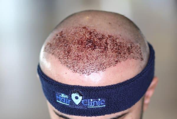 Nahaufnahme gut gepflegter Spenderbereich nach Haartransplantation