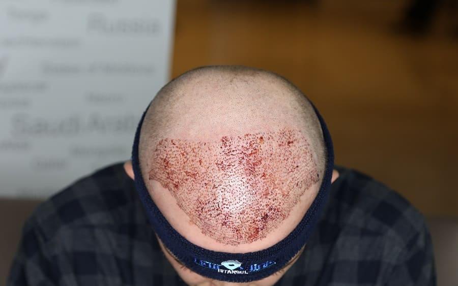 Haartransplantation Spenderbereich – problemlose Heilung nach der Entnahme?