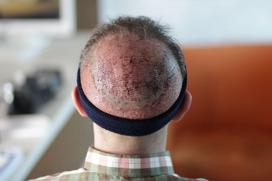 Eine Haartransplantation gegen Tonsur