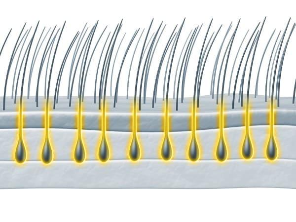 Haartransplantation mit Stammzellen - Wachstumfaktoren