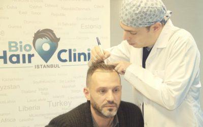 Haartransplantation mit Stammzellen: positive Auswirkung auf das Haarwachstum?
