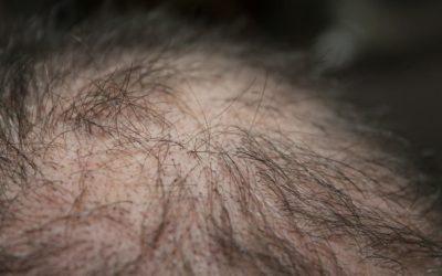 Achtung! Verpfuschte Haartransplantation vorbeugen
