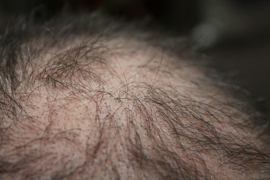 Verpfuschte Haartransplantation vorbeugen