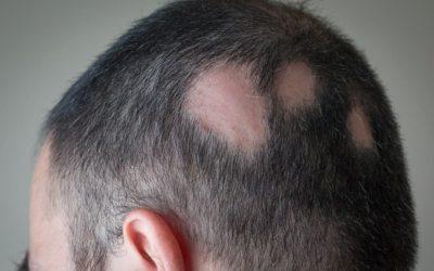 Die Autoimmunerkrankung – Haarausfall Alopecia Areata oder Alopecia Totalis