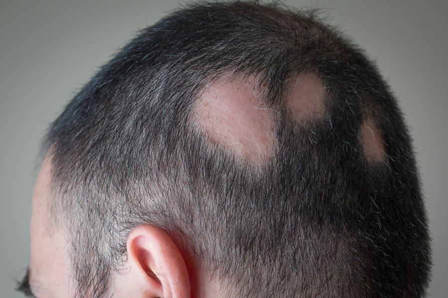 Autoimmunerkrankung Haarausfall