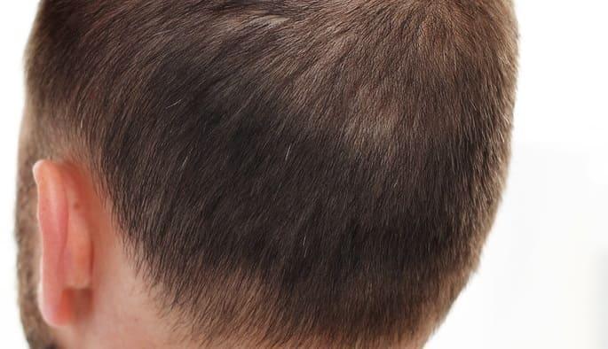 Nahaufnahme vor der Haartransplantation bei geringer Dichte