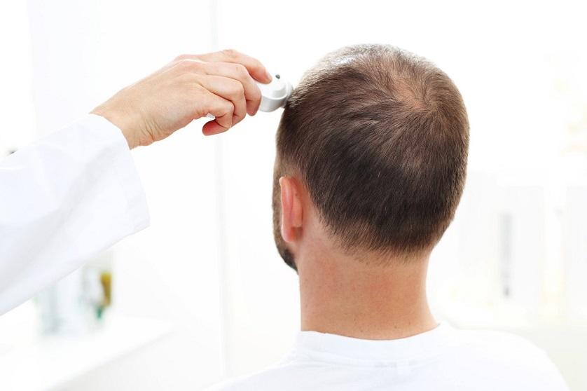 Mann mit geringer Haardichte erhält Lasertherapie