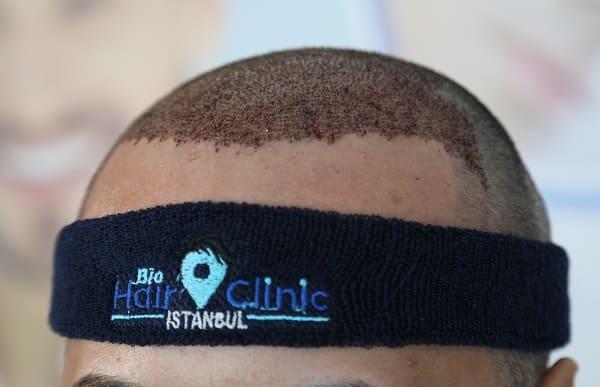 Nahaufnahme einer Kopfhaut nach Haartransplantation bei der Bio Hair Clinic