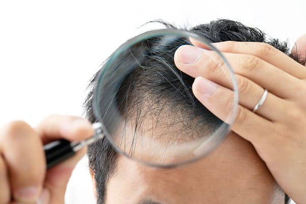 Haartransplantation Haare fallen woran liegt es