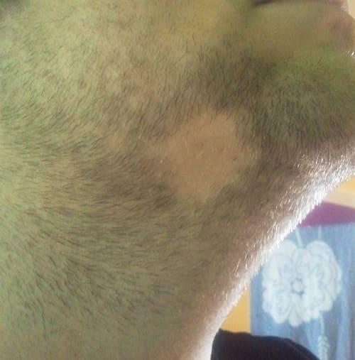 Haarausfall am Bart