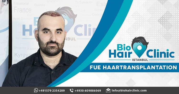 Haartransplantation mit Mikromotor oder Manuell