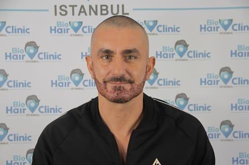 Eigenhaarverpflanzung in Bartbereich - Haarausfall am Bart