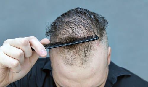 Haarausfall durch Essstörung thematisieren