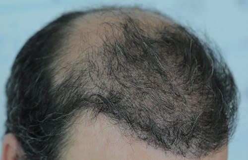 Haarausfall durch Essstörung - verbreitetes Problem