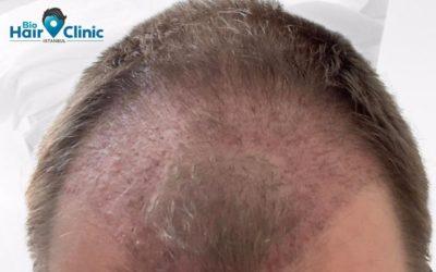 Nach der Haartransplantation: Pickel sind normal?