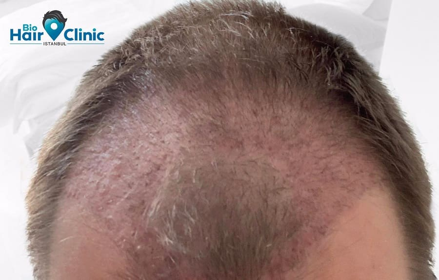 Nach der Haartransplantation: Pickel sind normal?