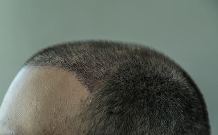 Nahaufnahme von Haar Wachstum nach Haartransplantation