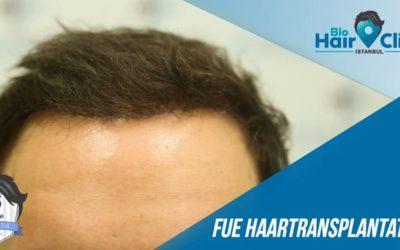 Nach der Haartransplantation: Die Wachstumsphasen des Haares