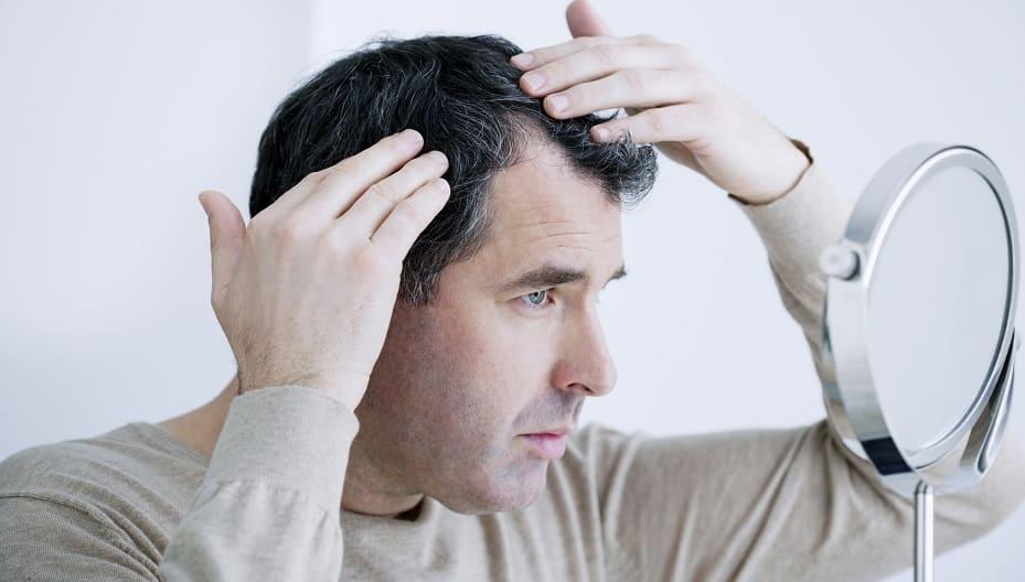 Wie entsteht einseitiger Haarausfall?