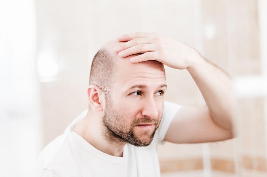 Folsäure gegen Haarausfall – so kann sie helfen