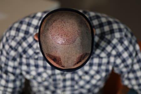 Haarkranz Haartransplantation im Tonsurbereich durchführen lassen