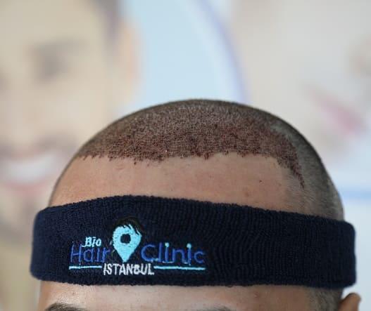 Haartransplantation mit Mega-FUE