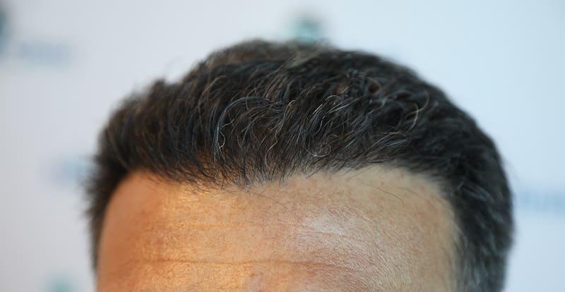 Haartransplantation und Nachhaltigkeit Haar wachsen